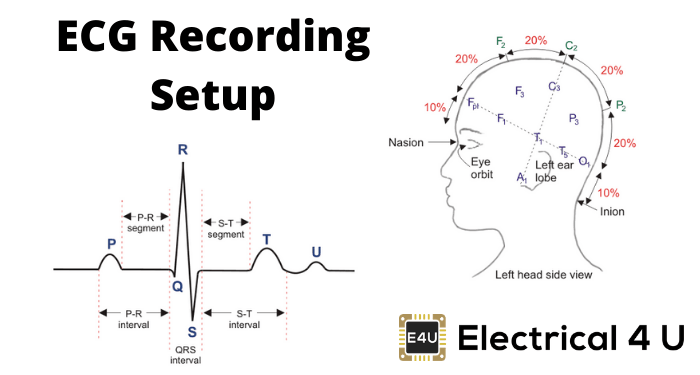 Ecg Recording Setup