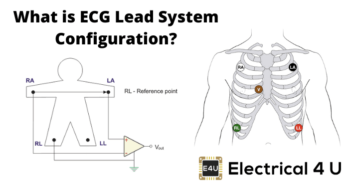 What Is Ecg Lead System Configuration